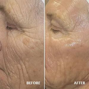 Before and After of Hydrafacial